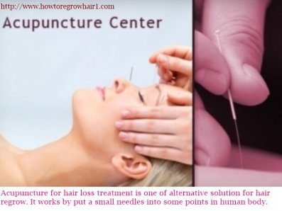 Acupuncture for Hair Loss Treatment