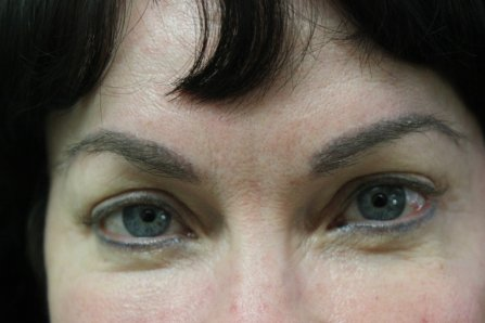 Full Eyebrows Created with FUE Eyebrow Hair Transplant - Hair Loss