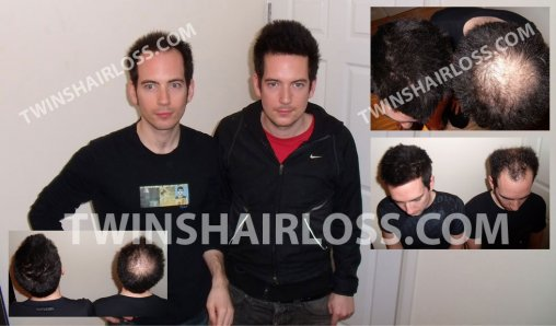 Male Pattern Hair Loss | MPHL | Twins Hair Loss