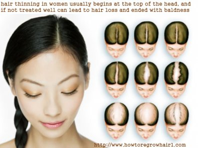 What Are The Causes And Treatments Of Hair Thinning In Women