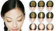 Female hair loss top head