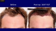 Hair loss women Forum UK