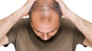 Preventing Hair Loss in Men