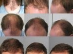 Thinning hair men 19