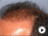Best review hair loss cure for men-women + Hair loss treatment and