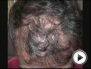 Can You Stop Hair Loss and Regrow Your Hair Naturally?