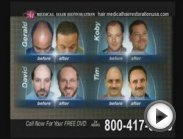 Get Hair restoration women