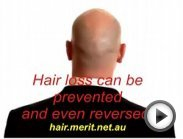 Hi Hair Loss and Treatment Hair Loss Treatment for Women