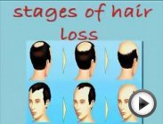 [How To Naturally Regrow Lost Hair in 15 Minutes a Day] regrowing