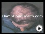 Man Grows Back Hair: Watch Hair Loss Treatment