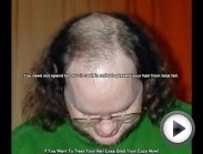 Natural Treatments For Hair Loss In Men