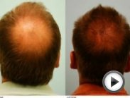 Nizoral Shampoo: Hairloss Before & After Results