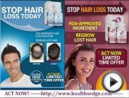 Provillus Hair Loss Treatment for Men and Women, hair restoration
