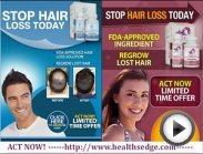 Provillus Hair Loss Treatment for Men and Women!.