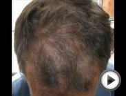 The Secret to: Stopping Your Hair Loss and Regrowing Your Hair
